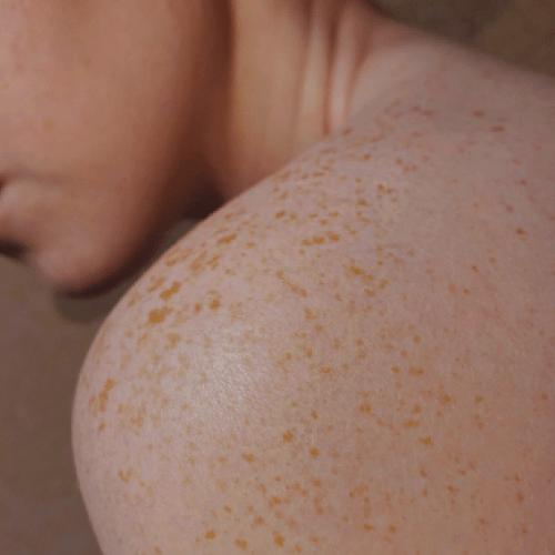shoulder skin