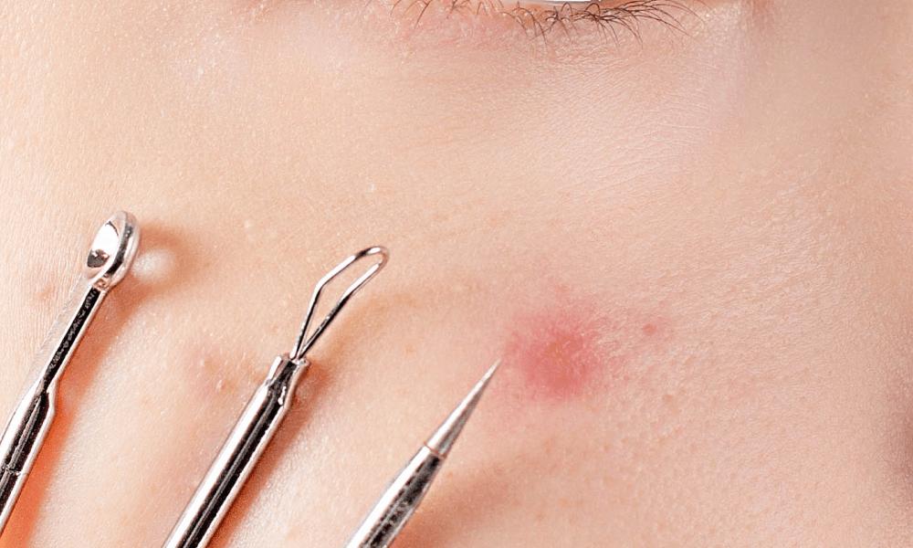 pcos acne